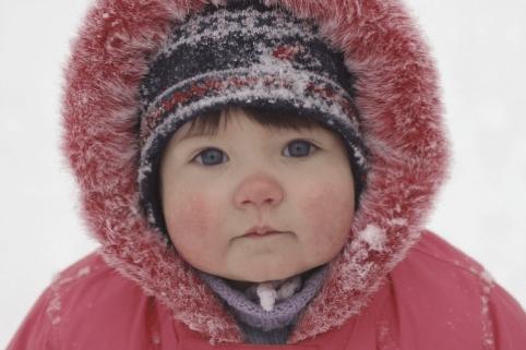 Il freddo stimola la produzione d'istamina