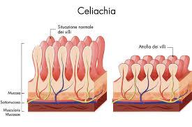 Villi ridotti in altezza nel morbo celiaco