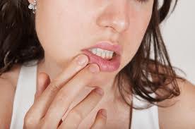 Stomatite allergica