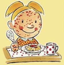 Le allergie alimentari si manifestano fin dall'infanzia